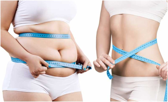 Anyone can access weight-loss treatment- True or not